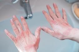 Gestes barrière et gel hydroalcoolique : une flambée de l'eczéma des mains !