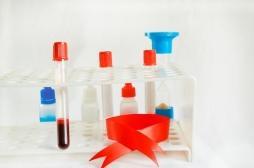 Hémophilie A : deux nouveaux traitements vont radicalement améliorer la vie de malades