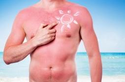 UV : les snacks nocturnes favoriseraient les coups de soleil