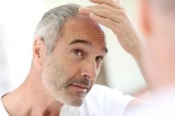 KROX20 : la protéine contre les cheveux gris et la calvitie