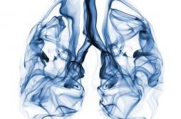 Cancer du poumon : le dépistage par le risque individuel supérieur au scanner du poumon