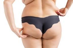 6% des cancers sont liés au surpoids et au diabète, surtout chez les femmes