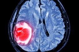Glioblastome : l'hydroxyurée renforce l'efficacité de la chimiothérapie