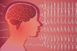Un dérivé du cannabis permet de réduire les crises d'épilepsie résistantes