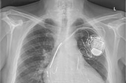Il est possible de passer une IRM avec un pace-maker