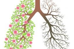 La BPCO (broncho-pneumopathie chronique obstructive) : silencieuse, mortelle, méconnue