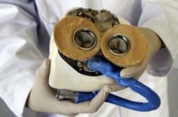 Carmat : le troisième patient implanté est rentré chez lui