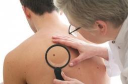Mélanome : une découverte pourrait renforcer l'immunothérapie