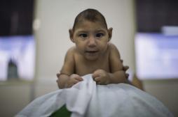 Zika : 20 fois plus de malformations aux Etats-Unis