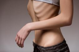 Anorexie : le dogme de la peur de grossir s'effondre