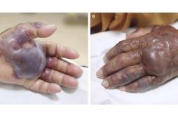 Corée du Sud: un homme amputé de la main après avoir mangé des fruits de mer crus