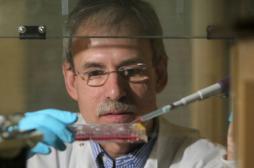 Découverte d'une enzyme impliquée dans le vieillissement de la peau
