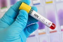Sida : une épidémie mondiale de virus résistant est à craindre
