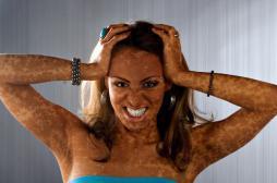 Vitiligo: des causes variées