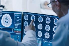 Cancer du cerveau de l'enfant : affamer les cellules pour soigner la maladie