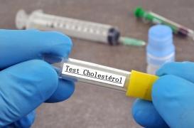 Cholestérol : se faire dépister tôt pour réduire les risques cardiovasculaires sur le long terme