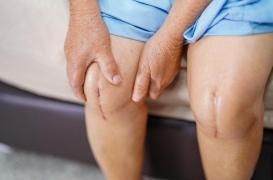Arthrose du genou : trop de gens se font opérer tardivement