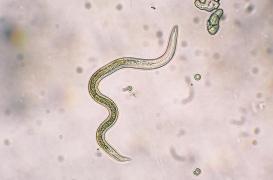 Chine: un ver de 30 cm découvert dans l'intestin d'une femme
