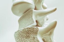 Ostéoporose : une nouvelle stratégie augmente de 800% la masse osseuse