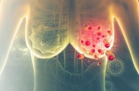 Cancer du sein : comment les signatures moléculaires aident au choix du traitement