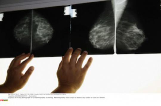 Cancer du sein : la double mastectomie n'améliore pas la survie