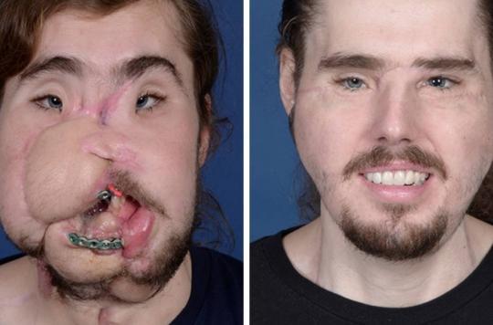 Un Américain subit une greffe faciale après une violente tentative de suicide