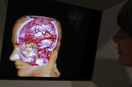 Imagerie médicale : une révolution au service du patient