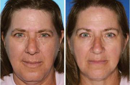 Tabagisme : le vieillissement de la peau mesuré chez des jumeaux