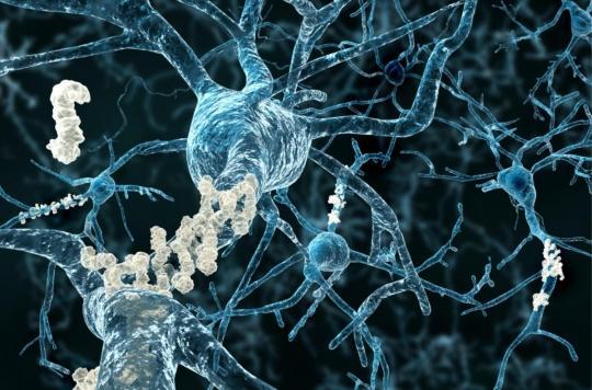 Alzheimer : la progression de la maladie filmée dans le cerveau de la souris