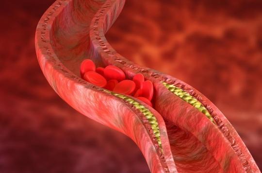 Thromboses après le vaccin anti-Covid : comment les prévenir et les traiter