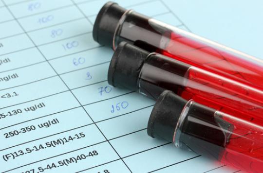 VIH : la trithérapie n'empêche pas le virus de migrer dans des organes