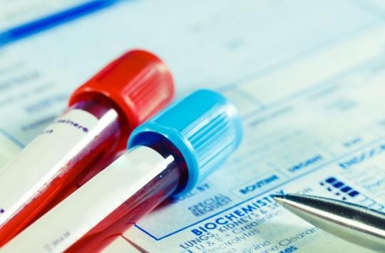 Fibromyalgie : l'espoir d'un test sanguin pour diagnostiquer la maladie