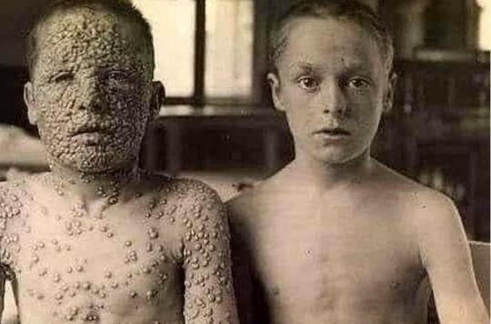 Variole  : oui, cette photographie choc attestant des bienfaits du vaccin est vraie