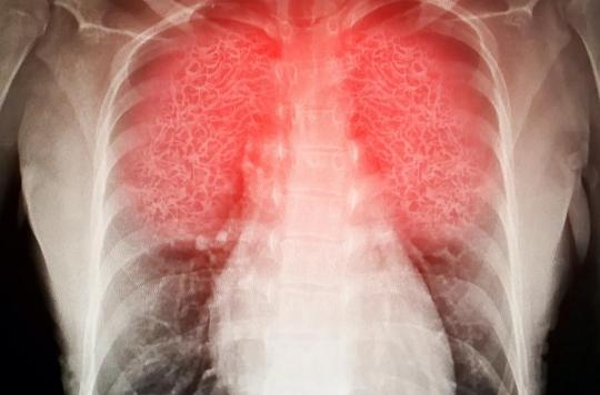 Covid-19: d'où viennent les lésions pulmonaires dont souffrent certains malades?