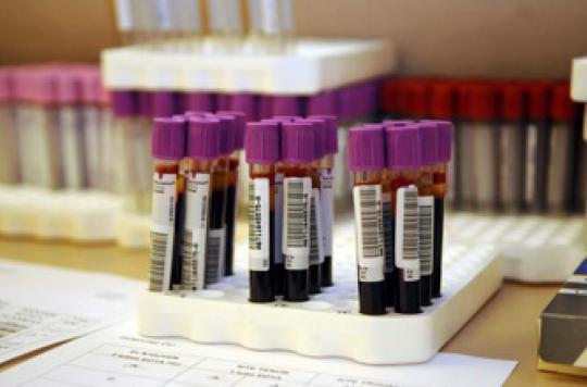 Dépister la drépanocytose chez tous les nouveaux-nés est inutile