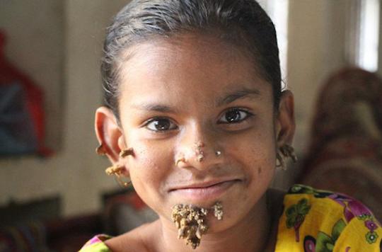 Bangladesh : Sahana serait le premier cas de \