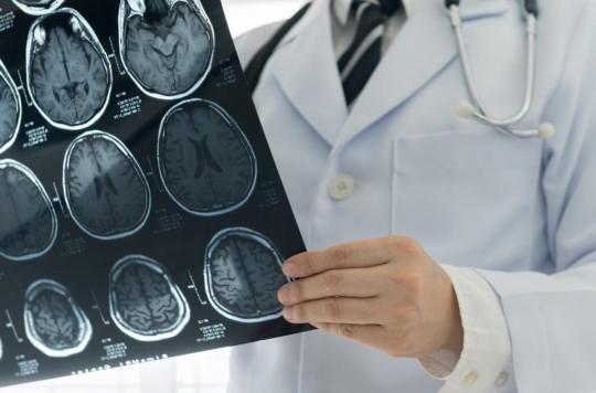 Subir un traumatisme crânien augmente le risque d'AVC