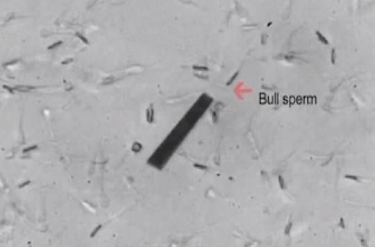 Des robots spermatozoïdes à l'assaut de  l'infertilité
