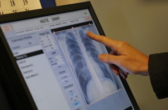 BPCO : le généraliste passe à côté du diagnostic