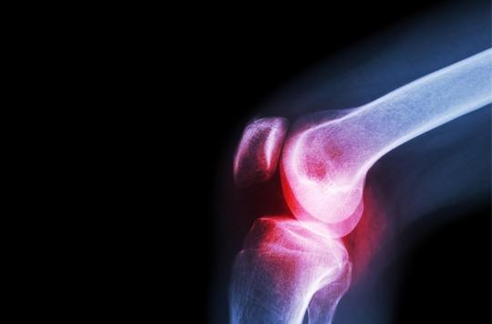 Arthrose du genou : l'hydrogel fait ses preuves pour remplacer le cartilage