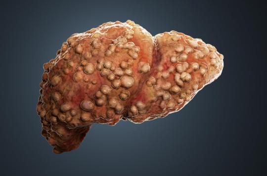 Stéatose hépatique : un foie d'alcoolique… sans boire une seule goutte