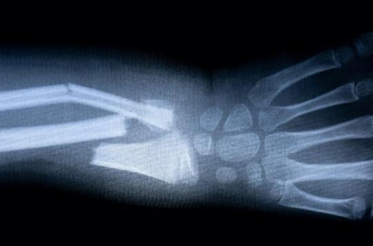 Un médicament pour accélérer la consolidation des os est prêt pour les essais cliniques