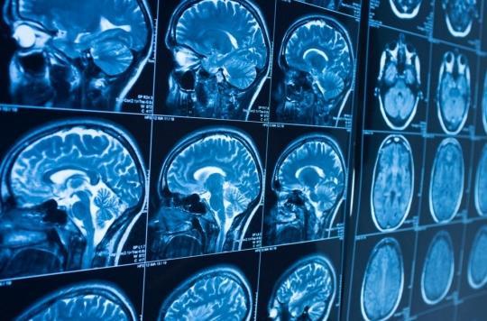 Sommeil : notre cerveau se « nettoie » pendant la nuit