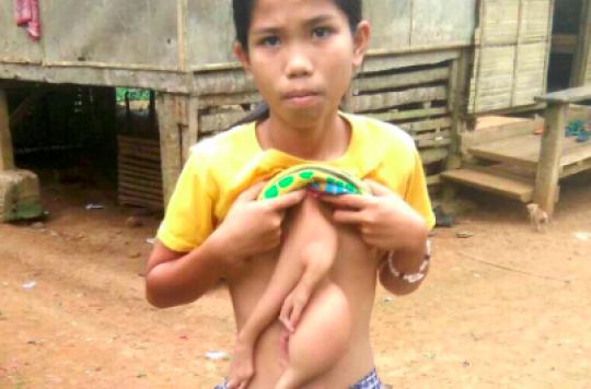 Philippines : une adolescente née avec six membres va s'en faire enlever deux