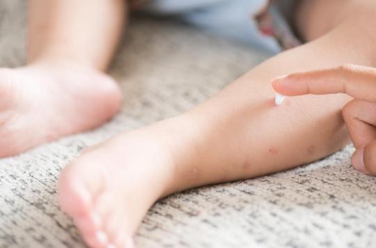Comment bien protéger les enfants contre les moustiques ?