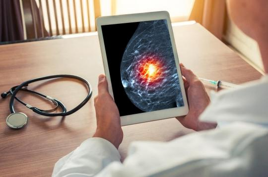 """Cancer du sein: une """"mammographie intelligente"""" pour le détecter précocement"""
