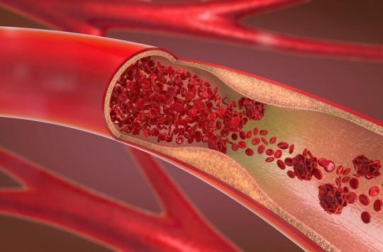 Coronavirus : le SARS-CoV-2 pourrait créer des caillots dans les vaisseaux sanguins