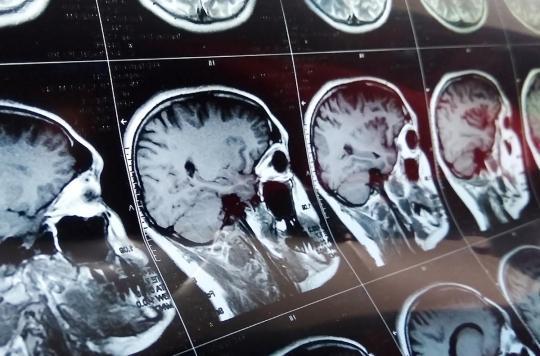 Coronavirus : une patiente développe une maladie cérébrale rare