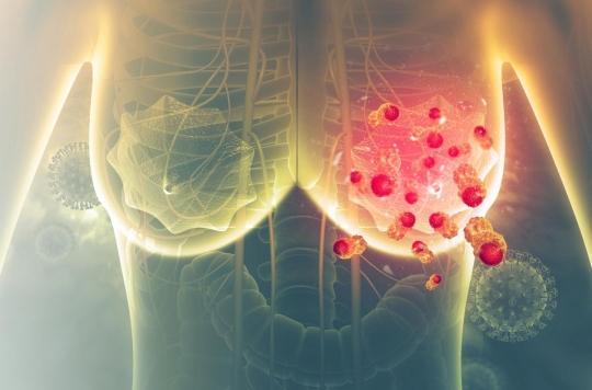 Cancer du sein : le gène responsable des formes très agressives identifié