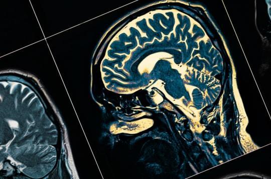Schizophrénie : des rayons X pour analyser les neurones